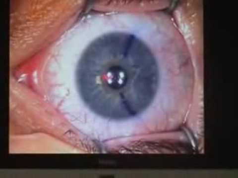 Picături pentru ochi care îmbunătățesc acuitatea vizuală