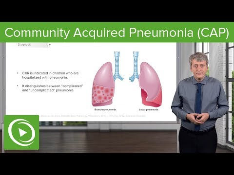 Community Acquired Pneumonia (CAP) – Pediatrics | Lecturio