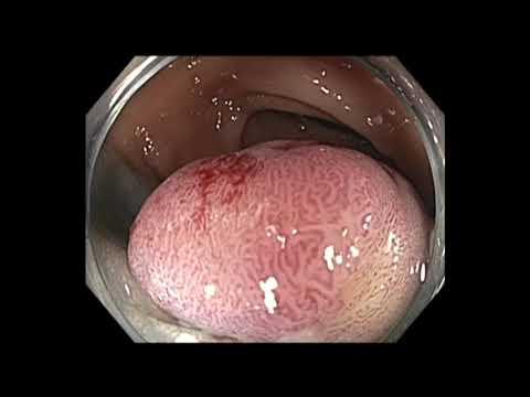 Kolonoskopia: mukozektomia endoskopowa (EMR) polipa odbytnicy