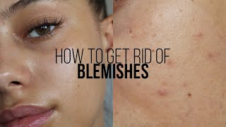 HOW TO GET RID OF BLEMISHES IN 3 DAYS | Jessicvpimentel