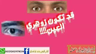 #الزوهري2# علامات زوهري العينين👀 بتفصيل الراقي المغربي رشيد أبو إسحاق