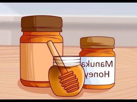 Los ungüentos eficaces y la crema de la psoriasis sobre la cabeza