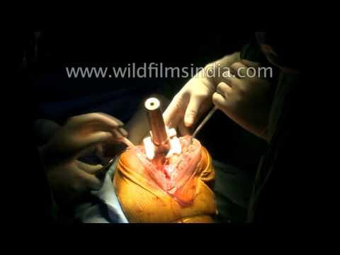 Arthrose Behandlung von Volksmedizin Hals