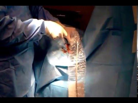 Che togliere un prurito a varicosity