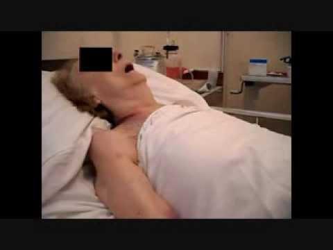 Tratamiento de la hipertensión arterial y pulso alto