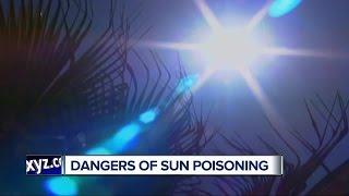 Ask Dr. Nandi: Sun Poisoning Symptoms, Treatment & Prevention