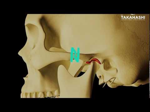 Imágenes de rayos X de las articulaciones de la cadera