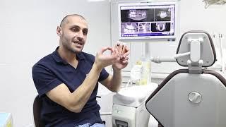 Киста зуба. Лечение от А.М.Давтяна