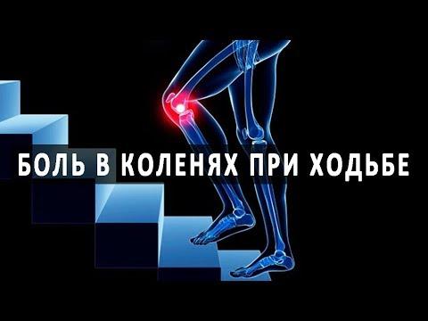 Какие протезы коленного сустава лучше