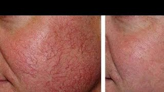 Repair demage skin at home/Facial spider veins causes/treatment/
