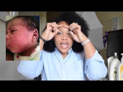 BABY ECZEMA UPDATE (PHOTOS, REMEDIES, TIPS)