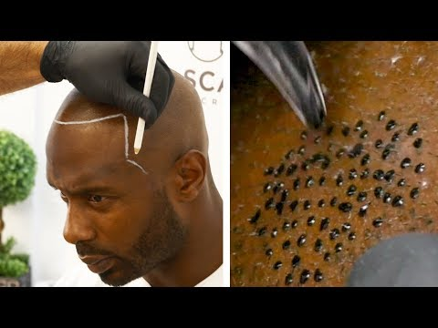 Bald Man Gets A Realistic Hair Tattoo | MTW