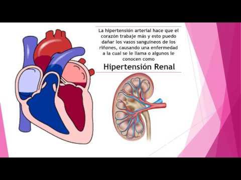 Tratamiento consejo médico de la hipertensión