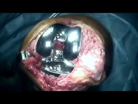Signos de dolor enfermedad pulmonar en la parte posterior