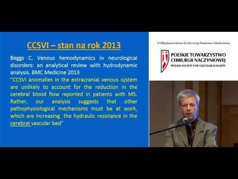 Leczenie endowaskularne przewlekłej niewydolności mózgowo-rdzeniowej (CCSVI)