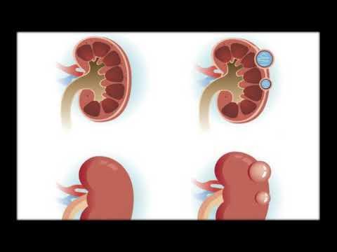 Prostata Fibrose Behandlung von Volk