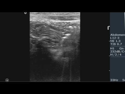 Сглажен лордоз шейного отдела симптомы