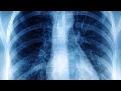 Poliartrita reumatoidă ameliorează durerile articulare
