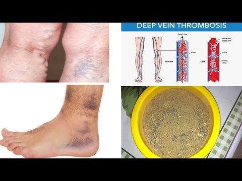 Trattamento di thrombophlebitises e varicosity