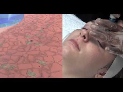 Der Grund das Erscheinen der Pigmentflecke und ihre Behandlung