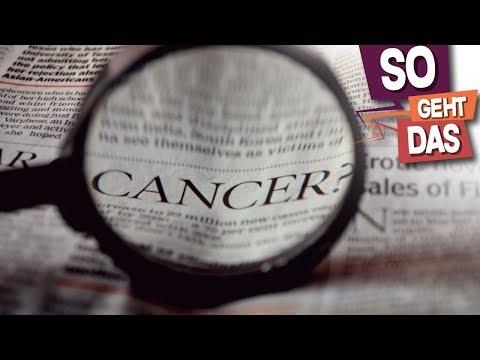 Die Preise für die Sklerotherapie in unter nowgorode