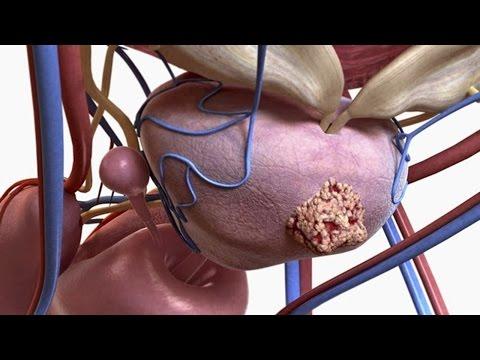 Prostatectomia para o cancro da próstata