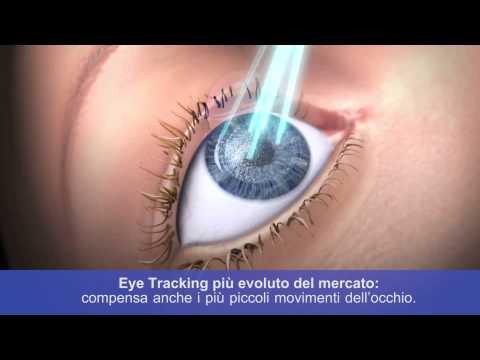 Macinatura laser di area di occhi