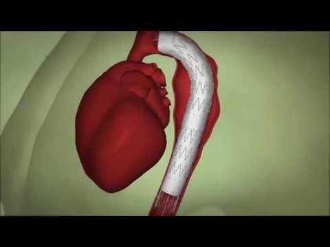 Cirurgia de Aneurisma da Aorta Toracica (Endovascular)