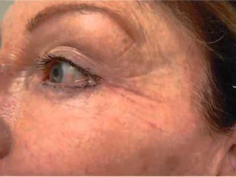 Les masques pour la peau autour des yeux de la carotte