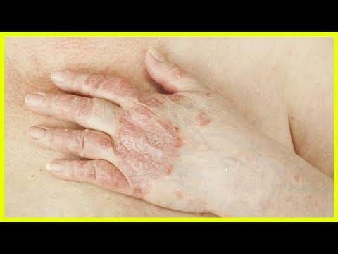 Die Eihaut bei atopitscheskom die Hautentzündung beim Kind