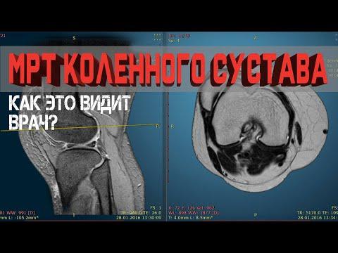 Разбор МРТ Коленного сустава. Что можно найти на снимке?
