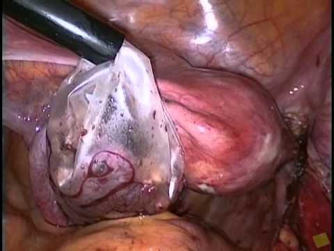 Human papillomavirus cancer