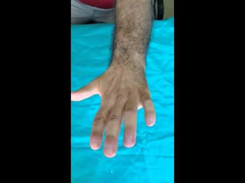 La gravità squallido di dolore alla schiena che