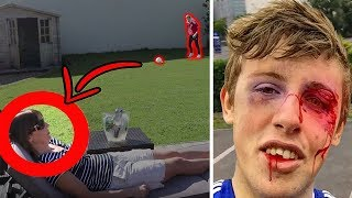 Top 5 ACCIDENTAL Injuries in YOUTUBE Videos