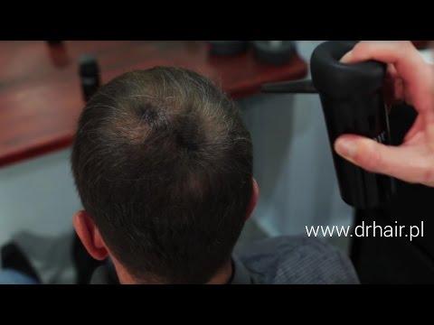 Leki przeciw łysieniu u mężczyzn