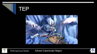 Master Class Of Laparoscopic Totally Extraperitoneal  TEP  Hernia Repair By Dr R K Mishra