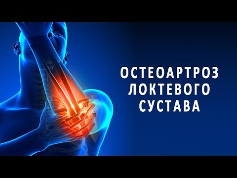 Остеоартроз локтевого сустава и его лечение