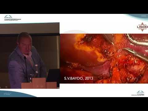 Неожиданные ситуации при лапароскопической гастрэктомии и способы выхода из них