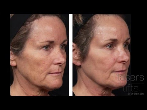 Laser facial resurfacing review Voronezh litrato