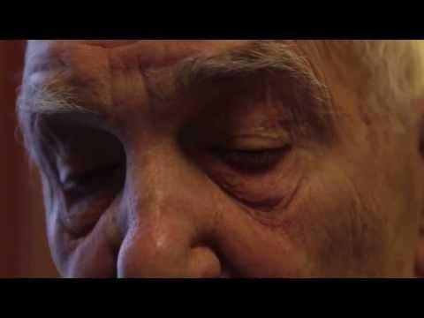 La crema da pigmentary nota su una faccia ad abbronzatura