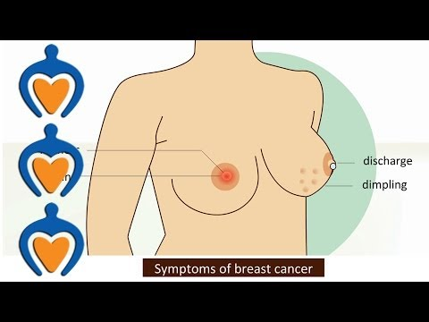 Video Breast cancer - Symptoms and treatment