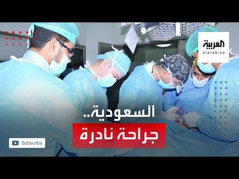العرب اليوم - شاهد عملية جراحية نادرة لفريق طبي سعودي تعيد قلب طفلة لمكانه