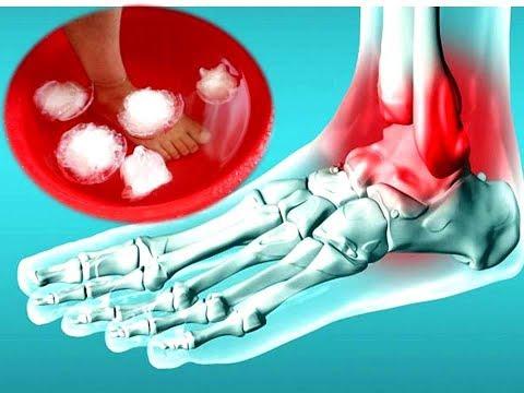 Вред от артроскопии коленного сустава