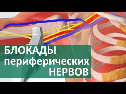 Псориатический артрит коленного сустава симптомы