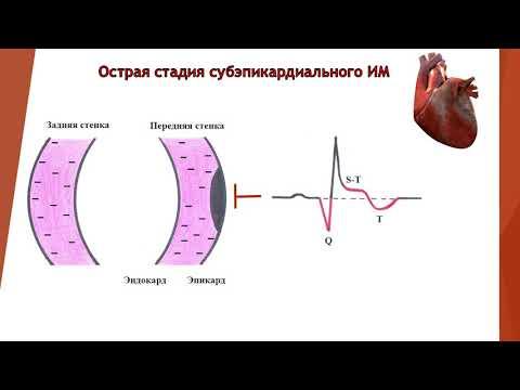 Prevencija hipertenzije Koraka 2