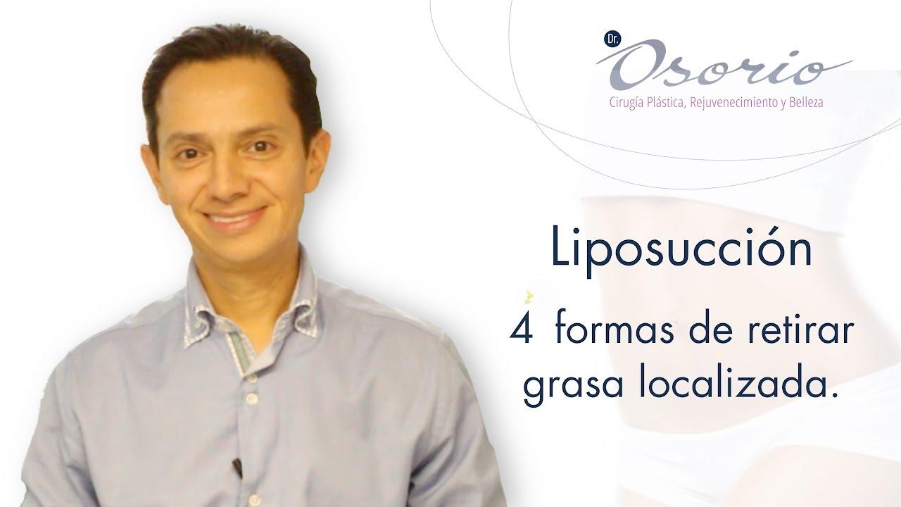 Lipoescultura Capítulo 2: Los 4 Métodos para retirar grasa localizada.