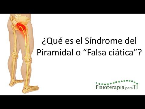 El tratamiento de la artritis de la artrosis de rodilla
