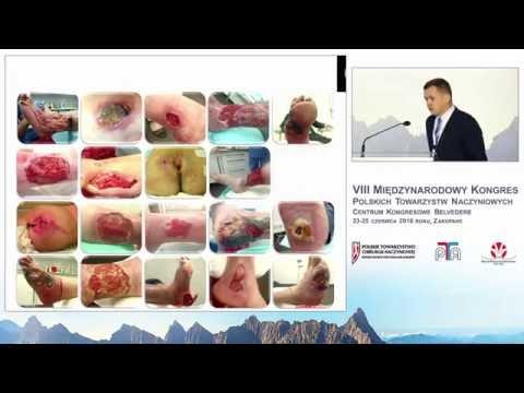 Współczesne metody i organizacja leczenia ran w trybie ambulatoryjnym