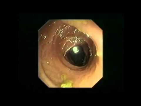 Die Behandlung von den Parasiten spb die Klinik