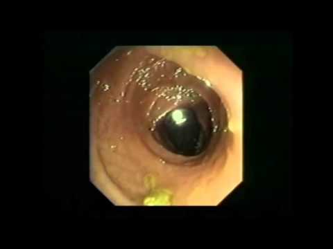 Wie kreolin bei den Parasiten zu trinken